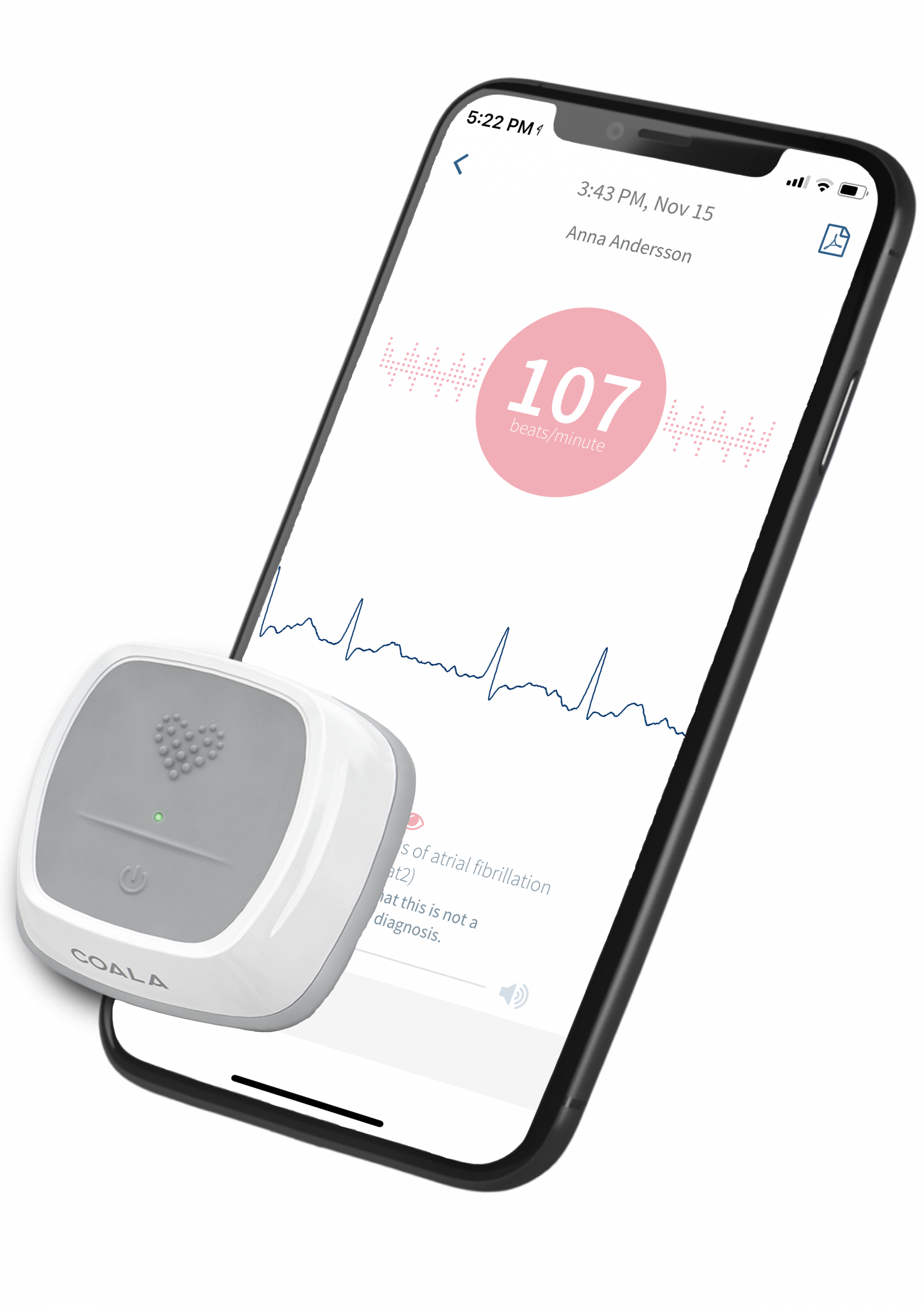 Coala Heart Monitor and iPhone with app with analyzed ECG curve